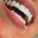 Польза фтора для зубов
