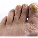 Грибок ногтей на ногах – лечение народными средствами