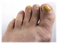 Ороговевшие ногти на ногах