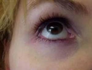 Как быстро убрать синяки под глазами?
