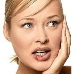 Простуда на губах – как ее лечить?