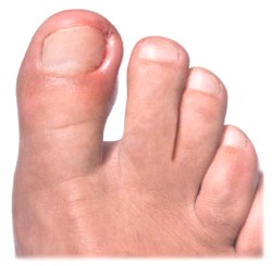 ...из-за того, что на боковых сторонах больших пальцев ног часто случается воспаление ногтевых валиков.