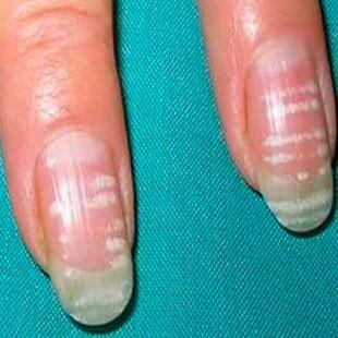 Почему образуются белые пятна на ногтях
