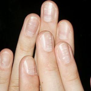 Появление белых пятен на ногтях - как избавиться?